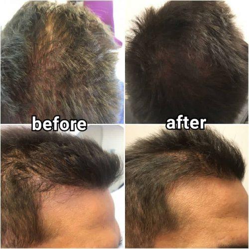 Activación de los folículos pilosos activos, densidad capilar hair solution mesoinstitute caviar extract biotin mesotherapy before after